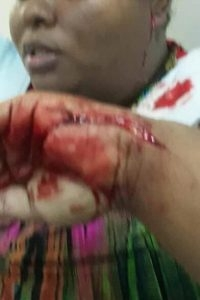 The injured Nazraphena Lette